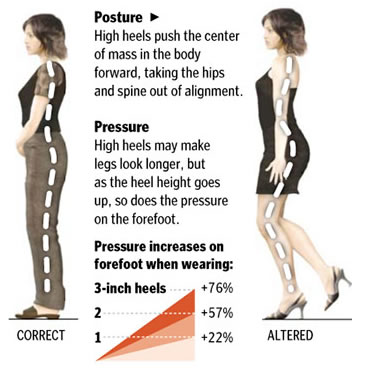 High heel posture problems