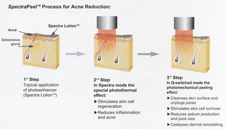 Spectra Laser Treatment For Treatment Of Acne Wrinkles